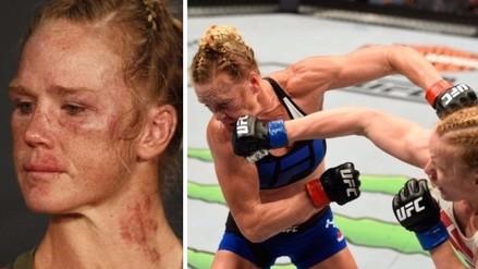 UFC: así quedó Holly Holm tras perder ante Valentina Shevchenko