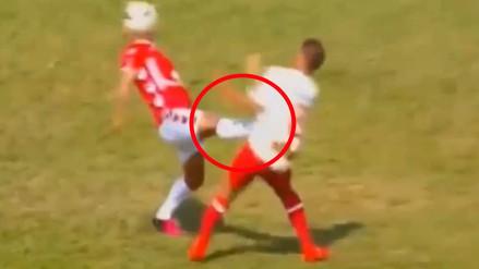 Universitario de Deportes: así quedó Roberto Siucho tras el planchazo