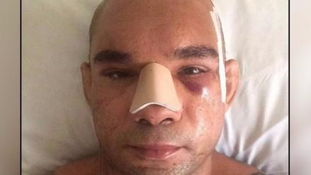 Fotos: impactante reconstrucción de cráneo a Santos Evangelista