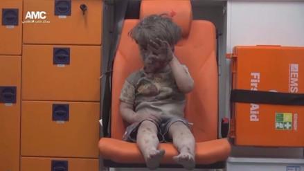 Muere el hermano del pequeño Omran por lesiones causadas por el bombardeo