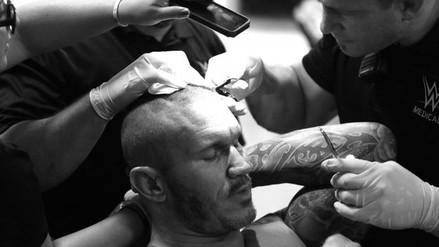 WWE: Randy Orton sufrió impresionante corte a manos de Brock Lesnar