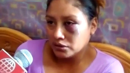 Mujer fue salvajemente golpeada por pedir pensión alimenticia para su bebé
