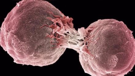 La inmunoterapia, un tratamiento contra el cáncer en nuestro organismo