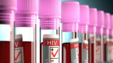 """Elmer Huerta: """"Estudio sobre cura de VIH aún es preliminar"""""""