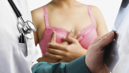 9 mitos y verdades sobre el cáncer de mama