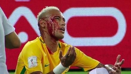 Neymar acabó ensangrentado tras codazo de jugador boliviano