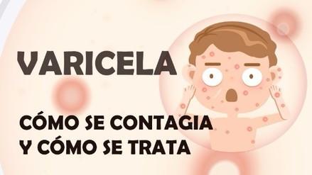 ¿Sabes qué es la enfermedad de la varicela y cómo tratarla?