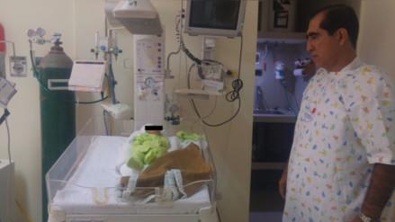 Hospital Belén brinda atención a bebé que nació con anencefalia