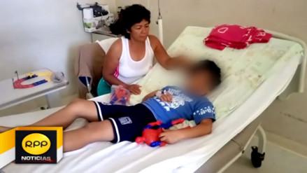 Tumbes: niño quedó con rostro desfigurado tras ataque de pitbull
