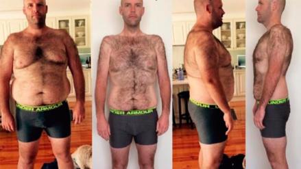 Un australiano solo comió papas por un año y perdió 52 kilos