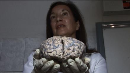 El insólito museo del cerebro humano que puedes conocer en Barrios Altos