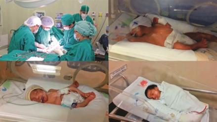 Primer nacimiento de trillizos se registró en hospital regional de Lambayeque