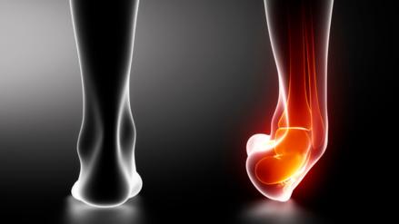 ¿Diste un mal paso?, cómo prevenir y tratar los esguinces de tobillo en el verano