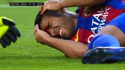 Rafinha sufrió una fractura nasal y será baja en la Copa del Rey