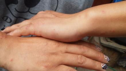 Plaga de zancudos y moscas invaden viviendas en Santa Eulalia