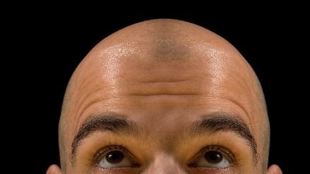 Ni un pelo más: por qué los hombres sin cabello resultan más atractivos