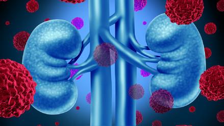 Insuficiencia renal crónica, cuando la sangre se contamina