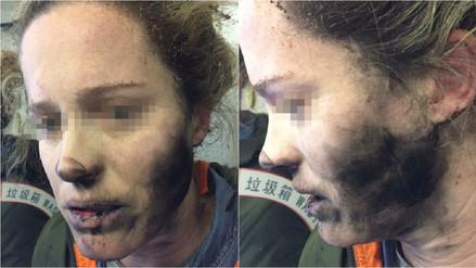 La batería de los auriculares de una mujer explotó en pleno vuelo