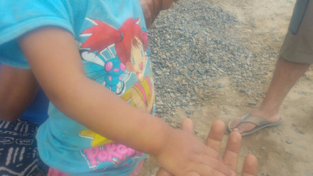 Trujillo: plaga de zancudos afecta a niños
