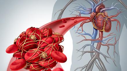 Hipertensión arterial, enfermedad silenciosa detrás de males mortales