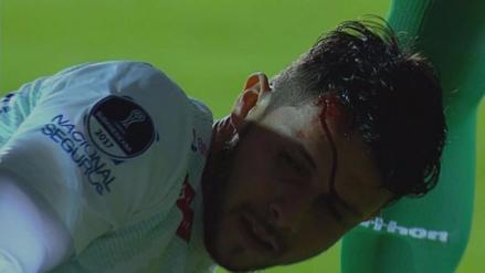 Proyectil hirió a un jugador antes de un partido de la Sudamericana