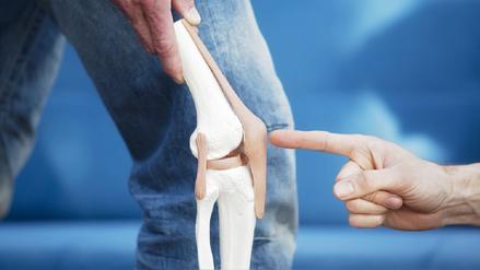 La fisioterapia evita una cirugía por artrosis