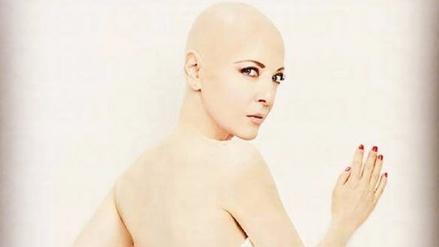 Edith González: médicos lograron controlar cáncer de ovarios