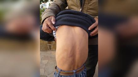 Denuncian brutal agresión contra niño de 6 años en Sánchez Carrión