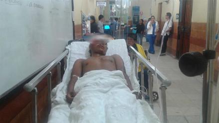 Hombre queda grave tras ser atropellado en carretera Panamericana Norte