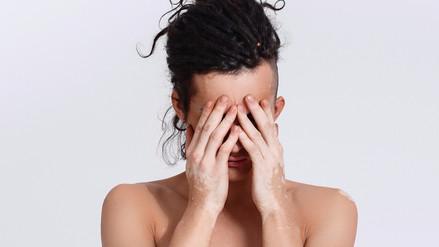 Aprender a vivir con vitiligo