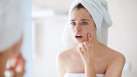 El acné: un problema que no solo afecta a los adolescentes