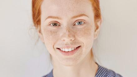 ¿Por qué algunas personas tienen ojos de diferente color?