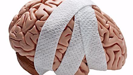 Golpes en la cabeza causan daño neurológico a largo plazo