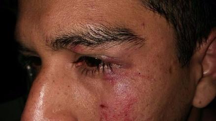 Facebook | Joven denuncia brutal agresión durante un partido de fulbito