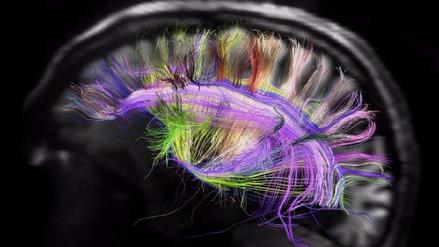 El cerebro adulto produce neuronas en un parte hasta ahora desconocida por la ciencia