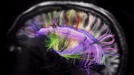 ¿Cuándo aparecen los signos de envejecimiento cerebral?