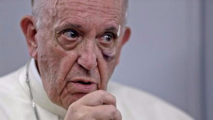 El papa Francisco sobre la destrucción del medioambiente: