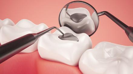 Un potencial uso de la aspirina podría reparar la caries dental