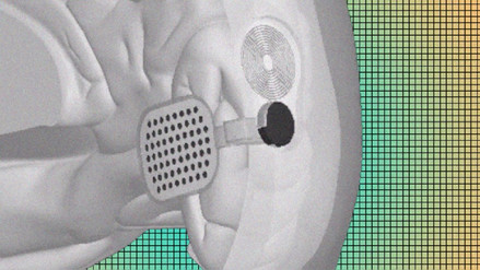 Un chip implantado en el cerebro podría restaurar la visión en humanos