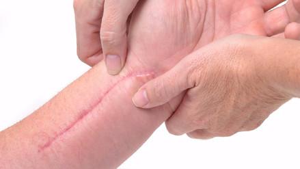 Fisioterapia en el tratamiento de cicatrices