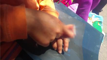 Escolar víctima de bullying está a punto de perder un dedo