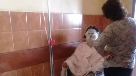 Chimbote: mujer se quemó el rostro al intentar prender horno de su cocina