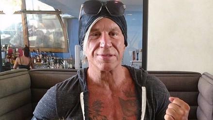 Mickey Rourke luce irreconocible tras nueva cirugía