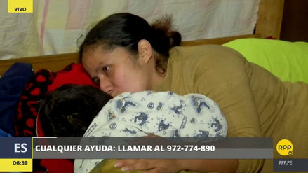 Un niño con un tumor en el rostro necesita ayuda urgente