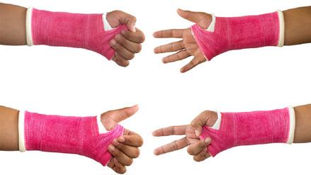 Cómo se consolidan las fracturas