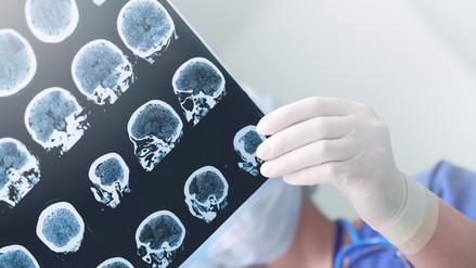 Bill Gates y su búsqueda para encontrar una cura al Alzheimer