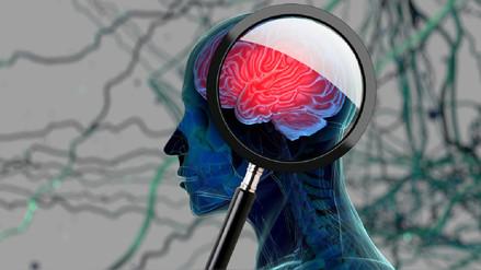 Cómo detectar a tiempo el Alzheimer