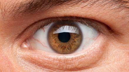 La presión intraocular alta causa daño al nervio óptico y glaucoma