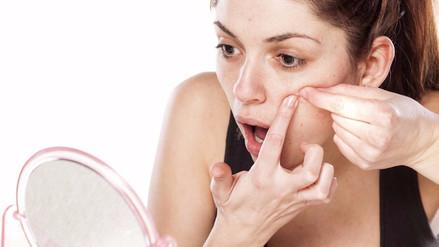 Combatir el acné depende de la buena alimentación e higiene