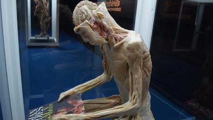 Exposición de cuerpos humanos reales volverá a Lima